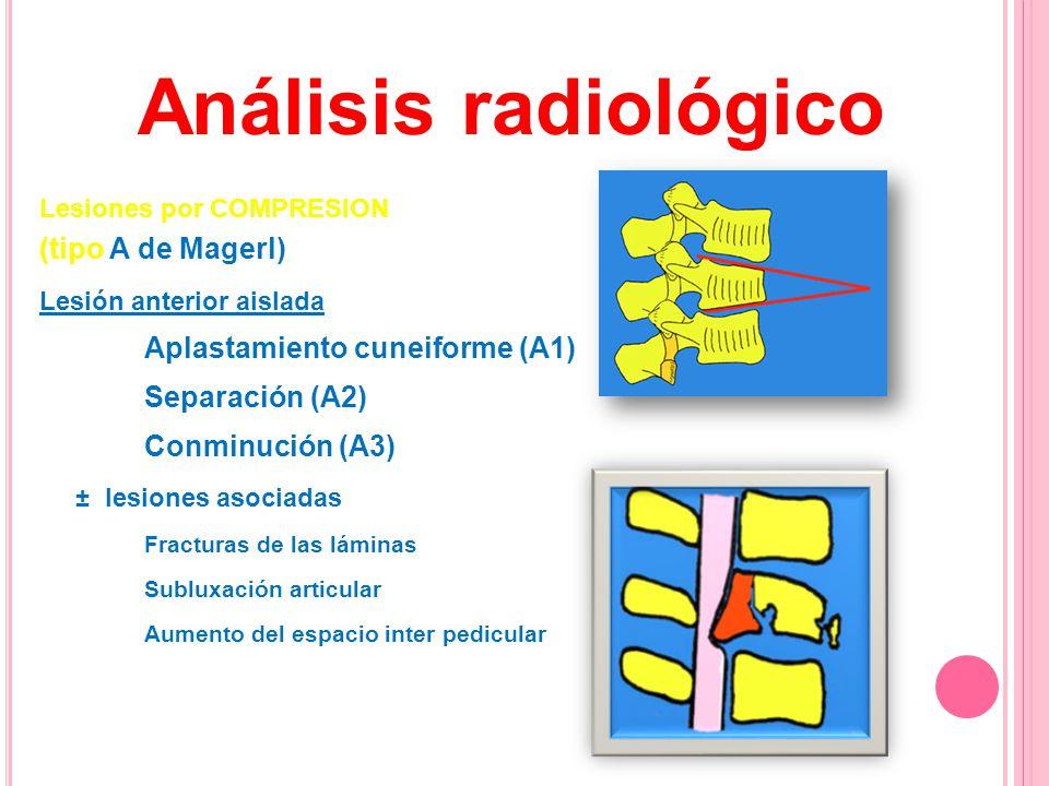 Análisis radiológico (tipo A de Magerl) Separación (A2)
