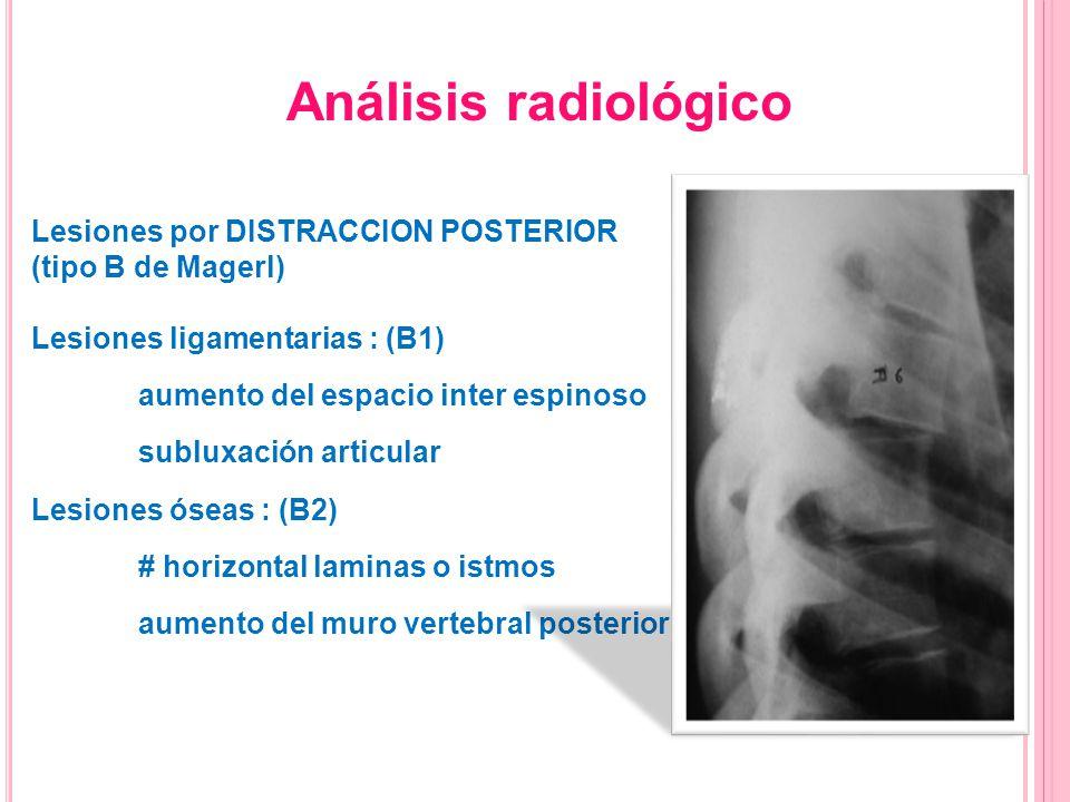 Análisis radiológico Lesiones por DISTRACCION POSTERIOR