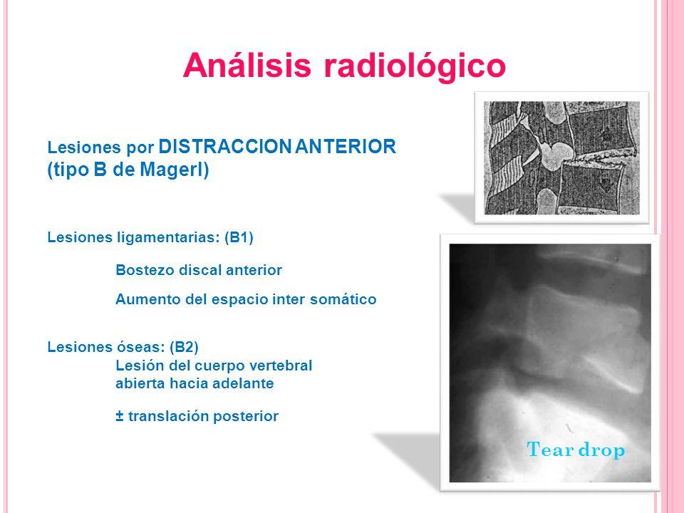 Análisis radiológico (tipo B de Magerl) Tear drop