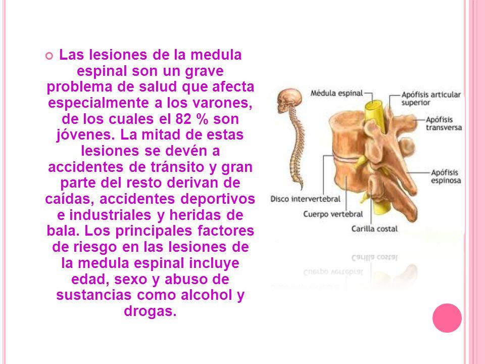Las lesiones de la medula espinal son un grave problema de salud que afecta especialmente a los varones, de los cuales el 82 % son jóvenes.