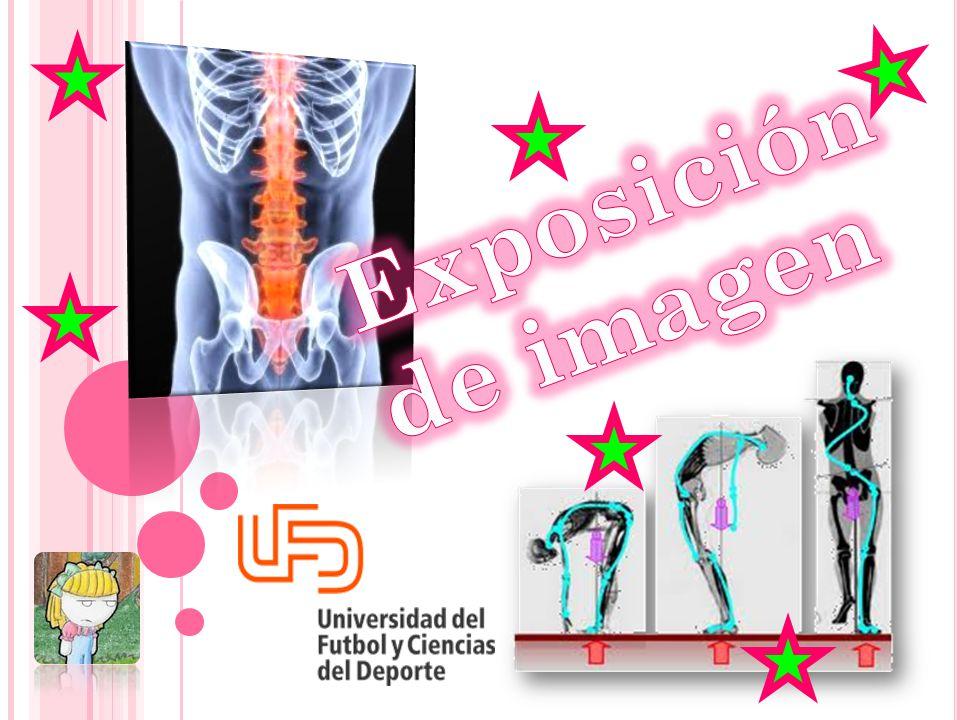 Exposición de imagen