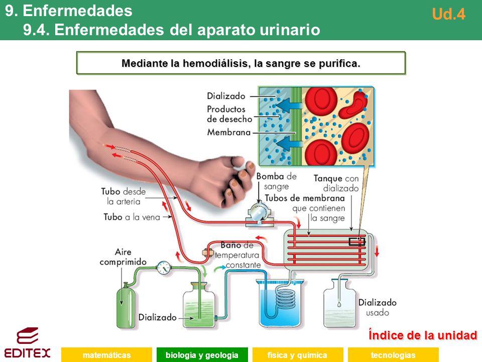 Mediante la hemodiálisis, la sangre se purifica.