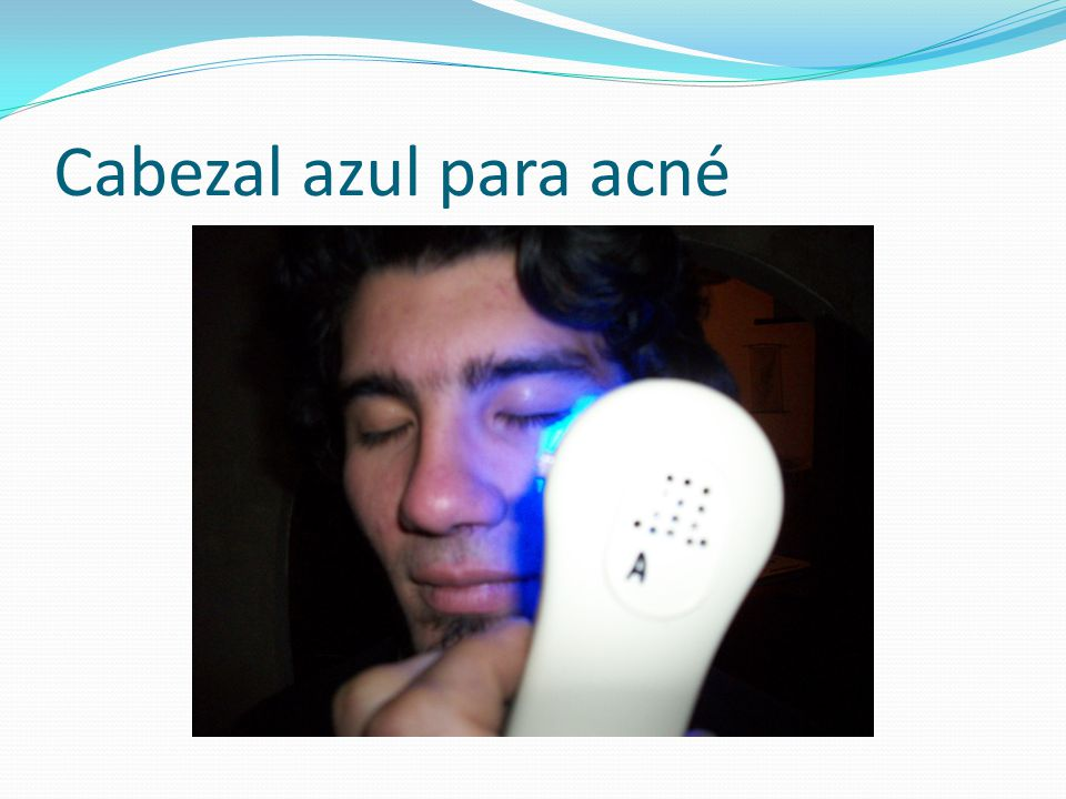 Cabezal azul para acné