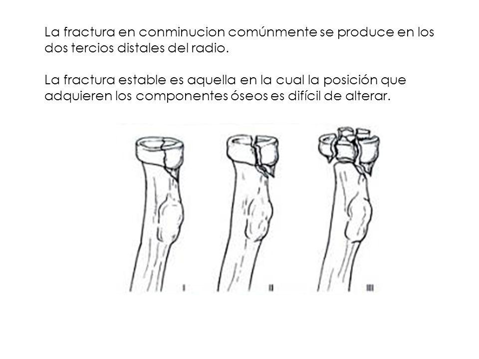 La fractura en conminucion comúnmente se produce en los dos tercios distales del radio.