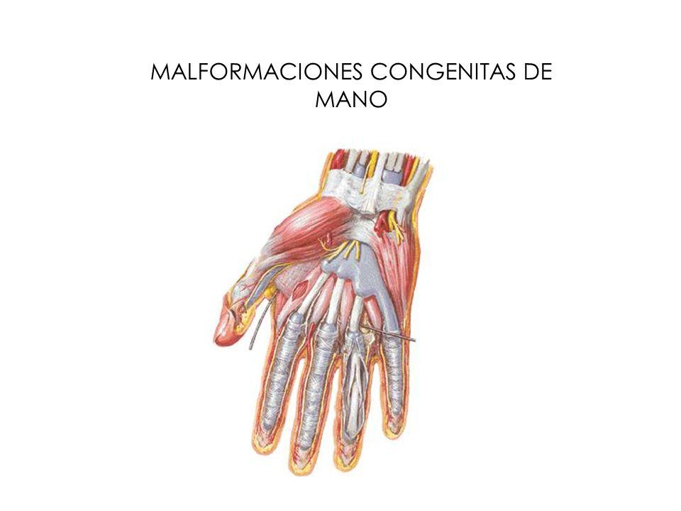 MALFORMACIONES CONGENITAS DE MANO