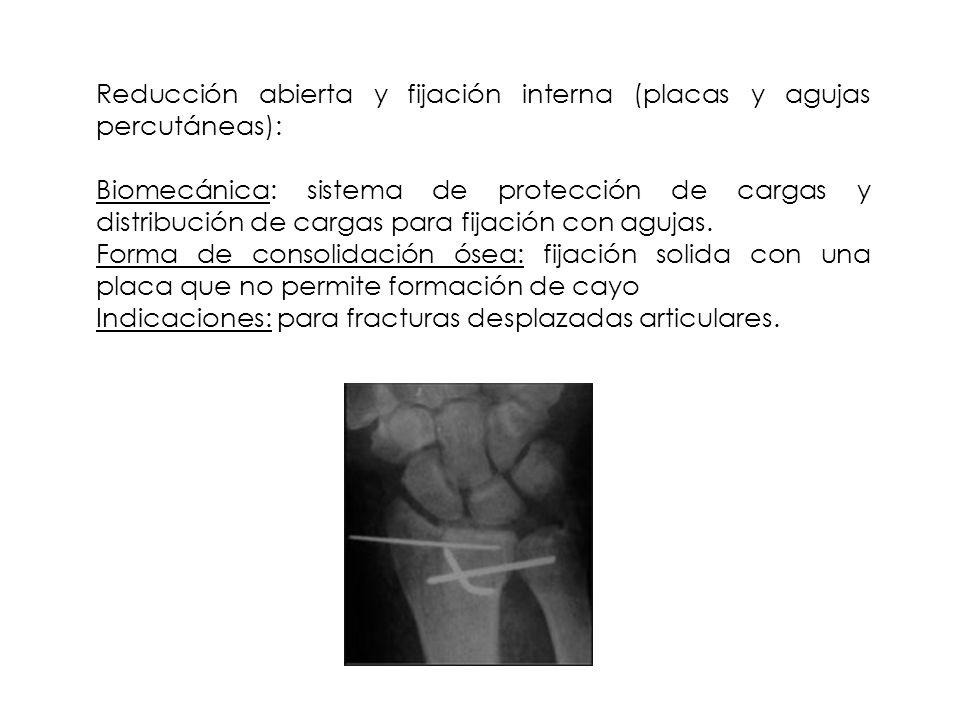 Reducción abierta y fijación interna (placas y agujas percutáneas):