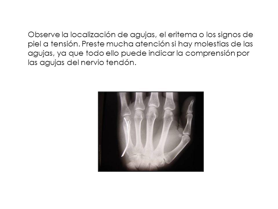 Observe la localización de agujas, el eritema o los signos de piel a tensión.