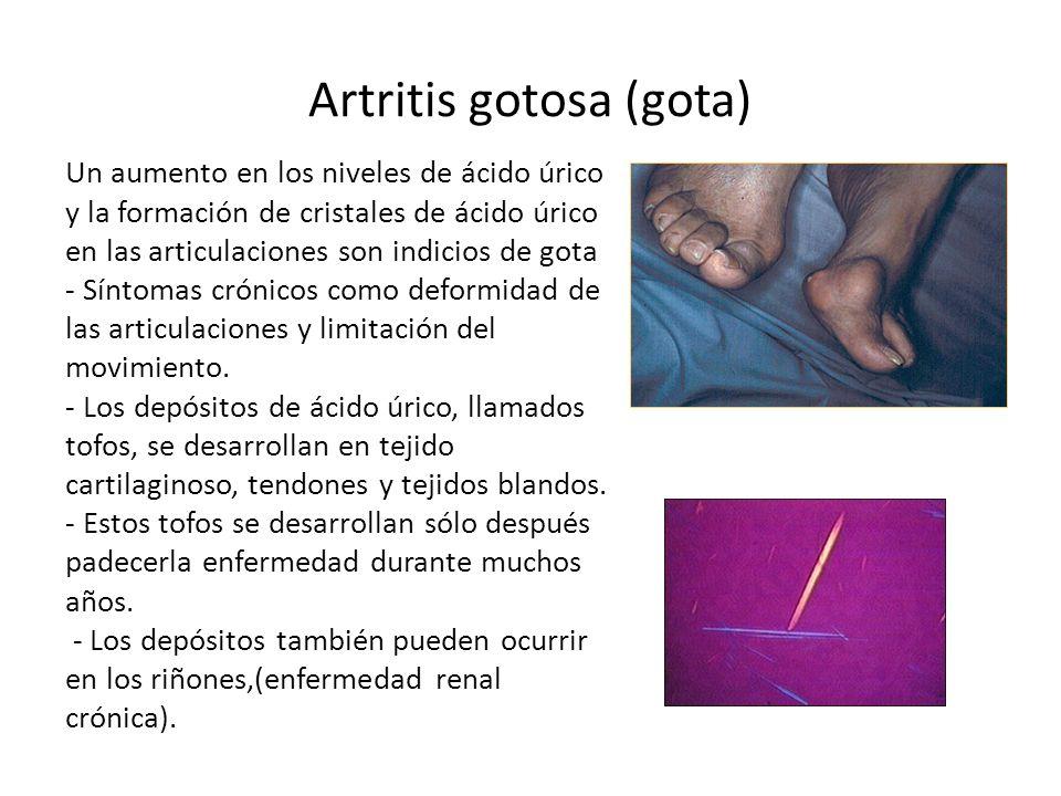 Artritis gotosa (gota)