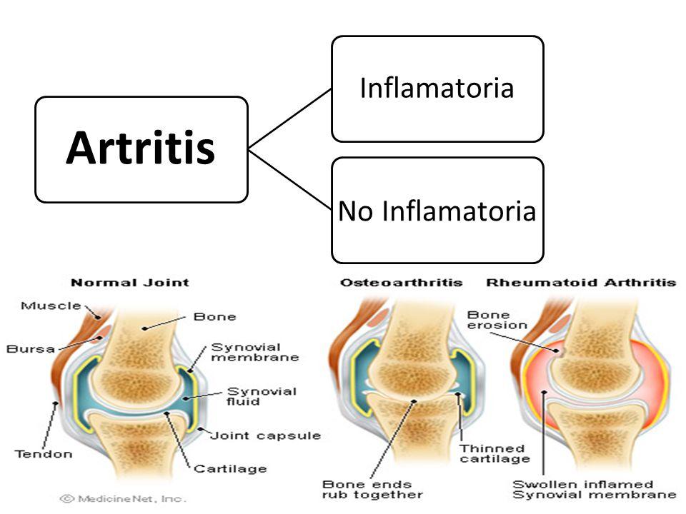 Artritis Inflamatoria No Inflamatoria