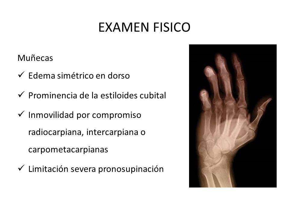 EXAMEN FISICO Muñecas Edema simétrico en dorso