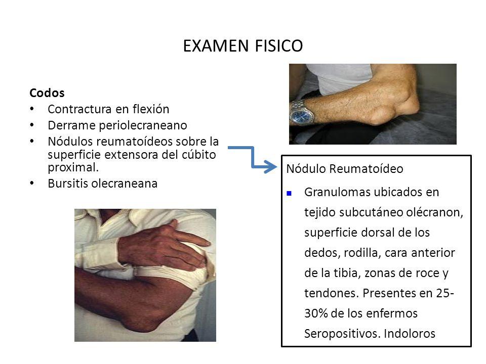 EXAMEN FISICO Codos Contractura en flexión Derrame periolecraneano