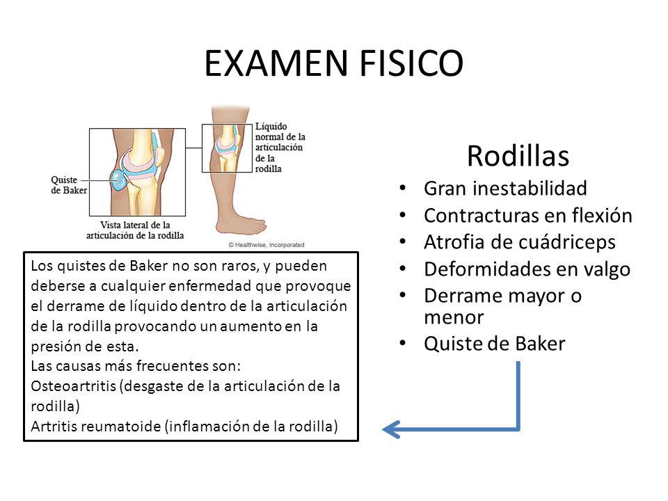 EXAMEN FISICO Rodillas Gran inestabilidad Contracturas en flexión