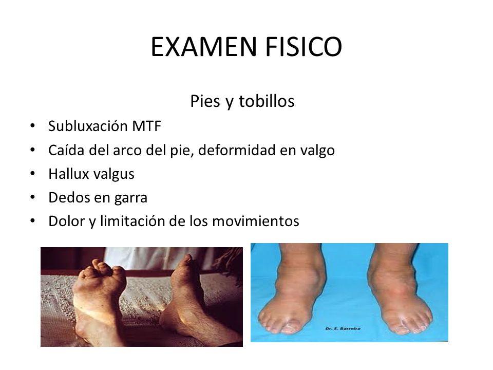 EXAMEN FISICO Pies y tobillos Subluxación MTF