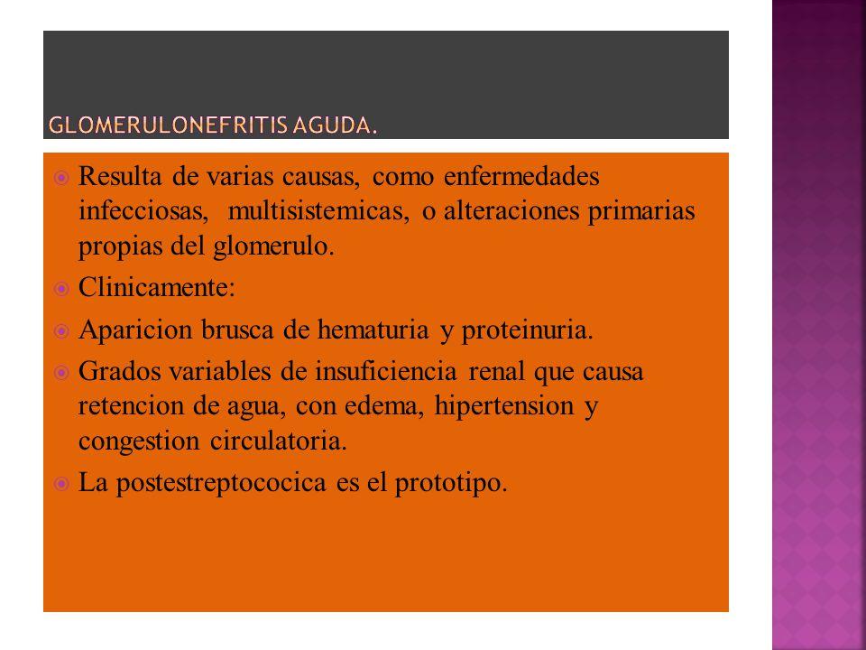 GLOMERULONEFRITIS AGUDA.