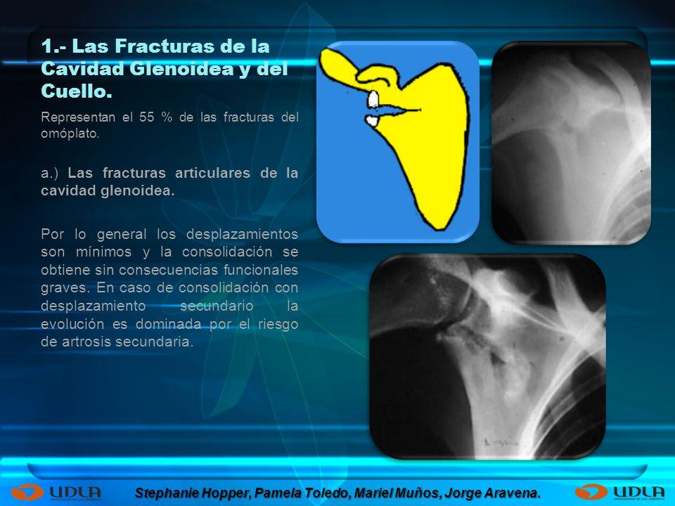 1.- Las Fracturas de la Cavidad Glenoidea y del Cuello.