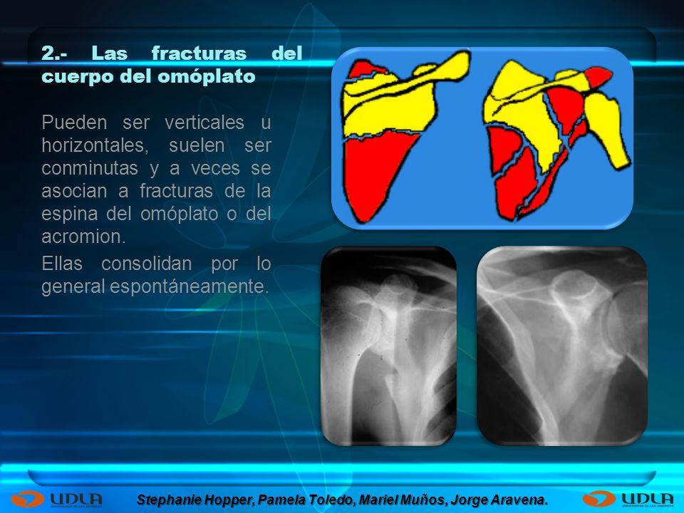 2.- Las fracturas del cuerpo del omóplato