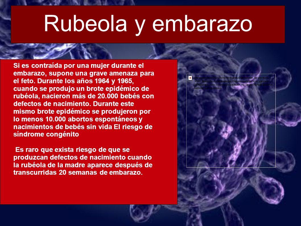 Rubeola y embarazo