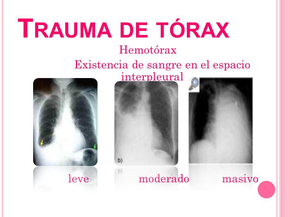 Trauma de tórax Hemotórax Existencia de sangre en el espacio interpleural leve moderado masivo