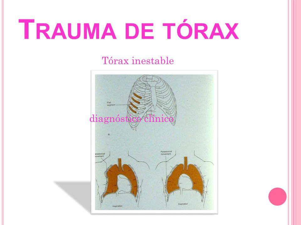 Tórax inestable diagnóstico clínico