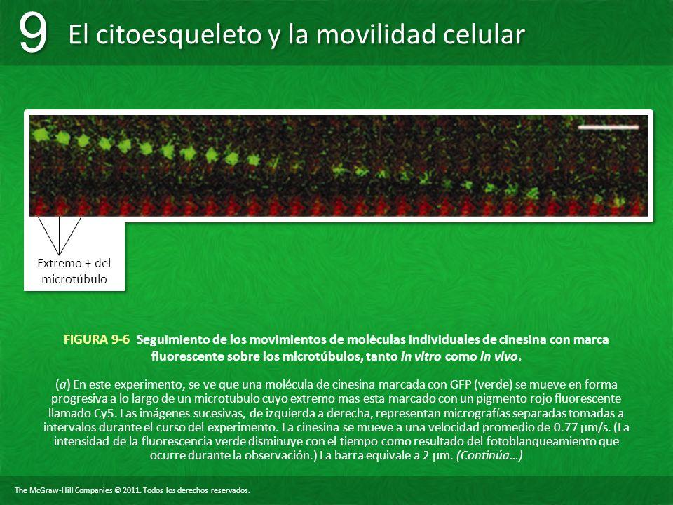 Extremo + del microtúbulo
