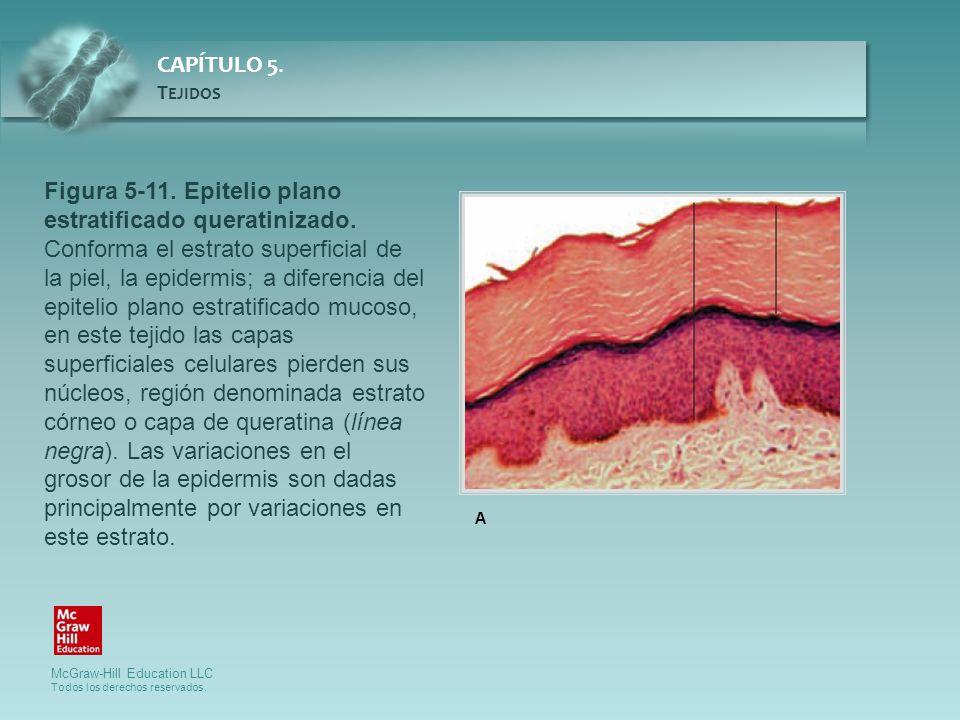 Figura 5-11. Epitelio plano estratificado queratinizado