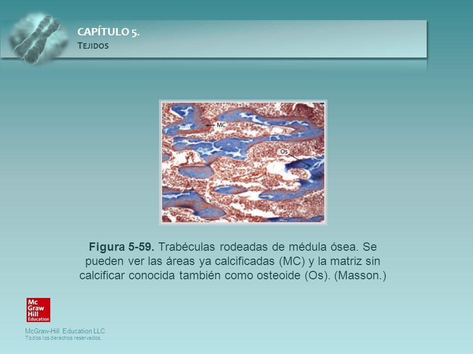 Figura 5-59. Trabéculas rodeadas de médula ósea