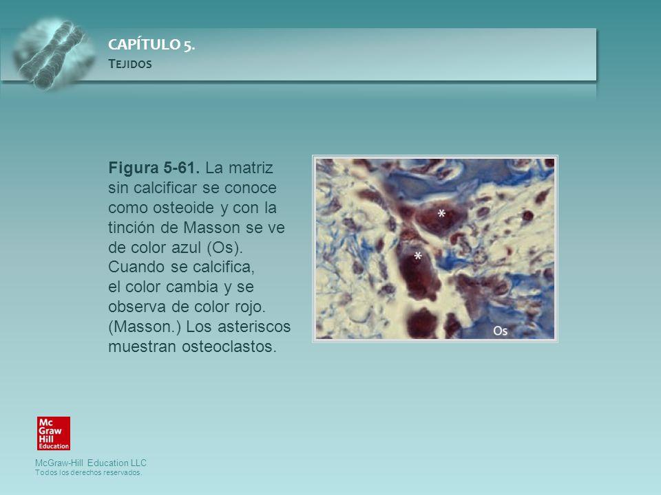 Figura 5-61. La matriz sin calcificar se conoce como osteoide y con la tinción de Masson se ve de color azul (Os). Cuando se calcifica,