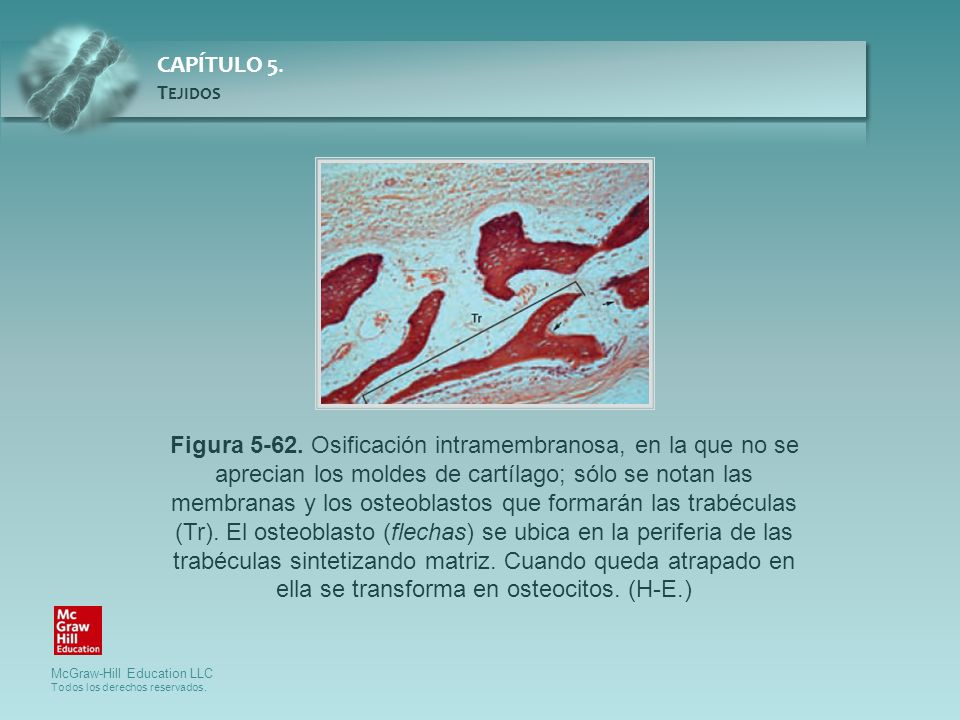 Figura 5-62.