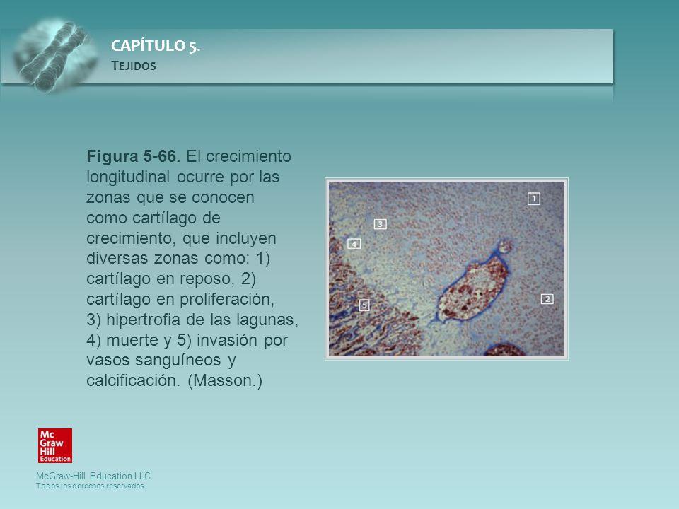 Figura 5-66. El crecimiento longitudinal ocurre por las zonas que se conocen como cartílago de crecimiento, que incluyen diversas zonas como: 1) cartílago en reposo, 2) cartílago en proliferación,