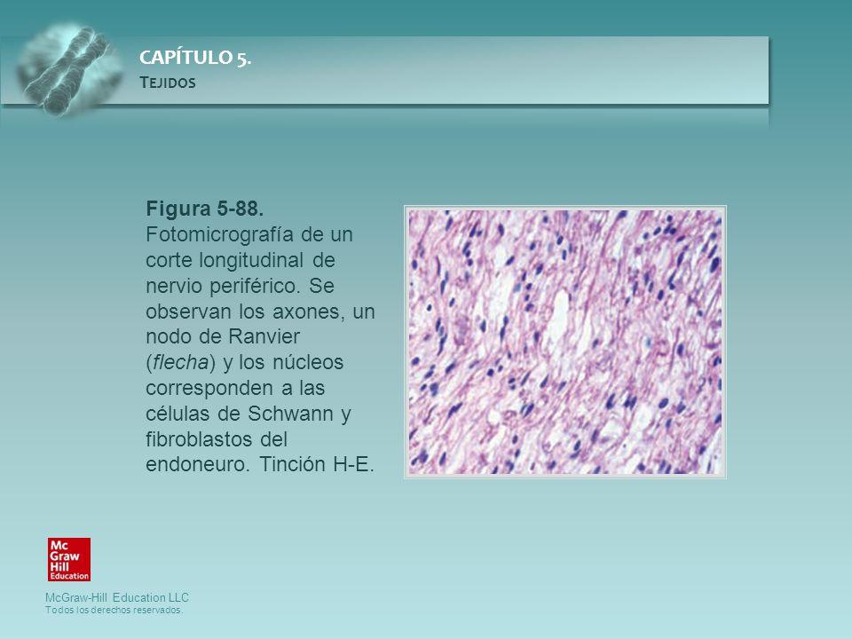Figura 5-88. Fotomicrografía de un corte longitudinal de nervio periférico. Se observan los axones, un nodo de Ranvier (flecha) y los núcleos corresponden a las células de Schwann y fibroblastos del