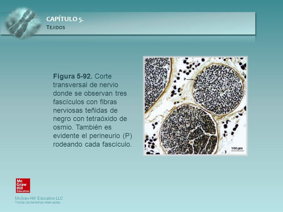 Figura 5-92. Corte transversal de nervio donde se observan tres