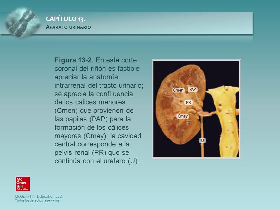 Figura 13-2. En este corte coronal del riñón es factible apreciar la anatomía intrarrenal del tracto urinario; se aprecia la confl uencia