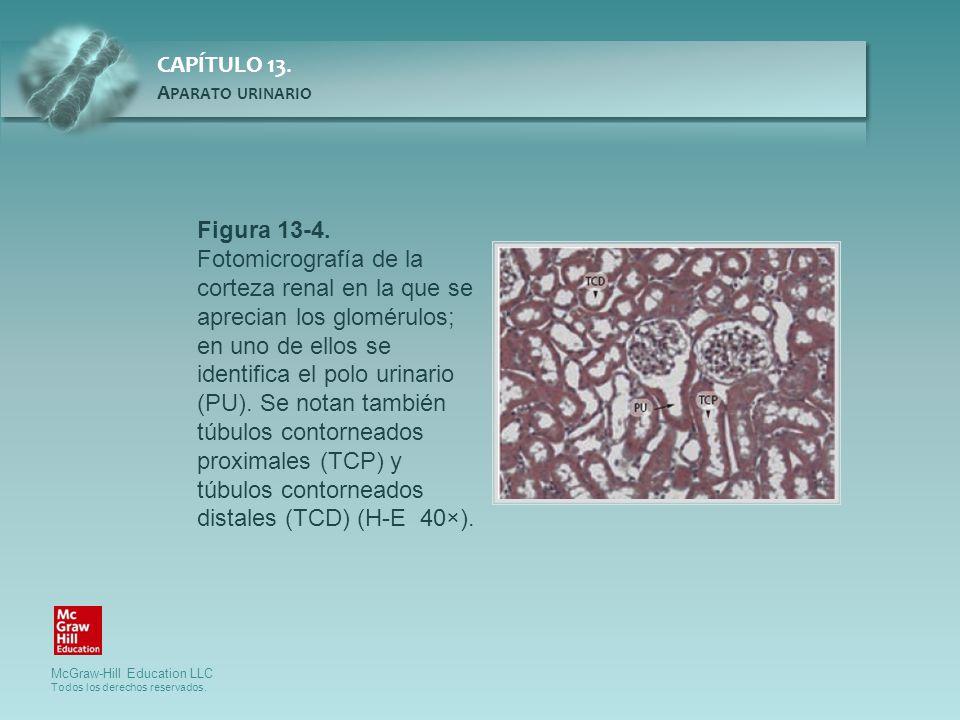 Figura 13-4. Fotomicrografía de la corteza renal en la que se aprecian los glomérulos; en uno de ellos se identifica el polo urinario (PU). Se notan también túbulos contorneados proximales (TCP) y