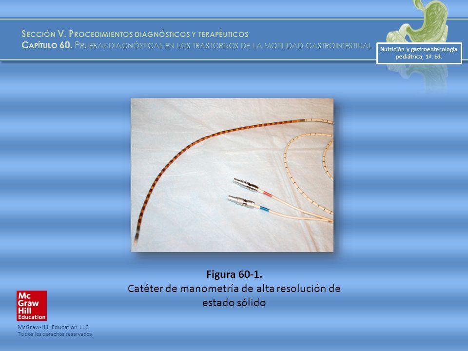 Catéter de manometría de alta resolución de estado sólido