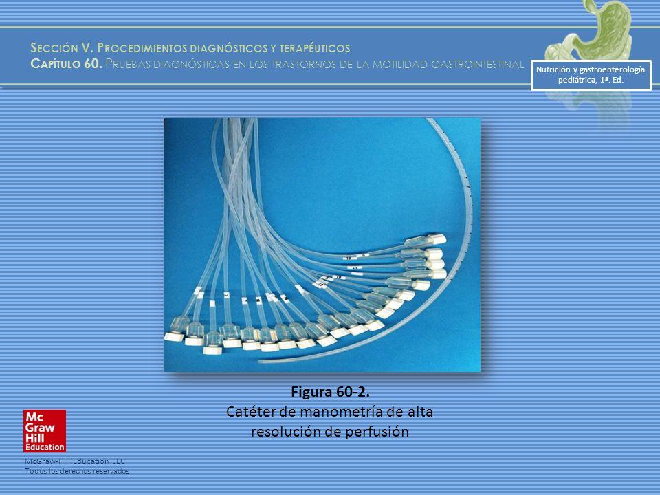 Catéter de manometría de alta resolución de perfusión