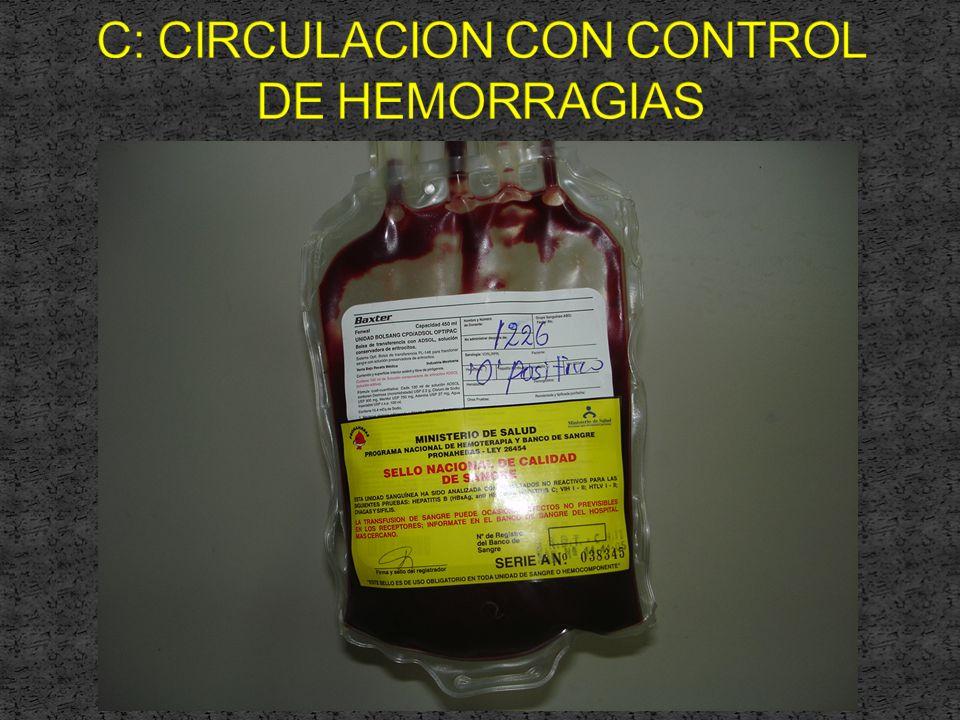C: CIRCULACION CON CONTROL DE HEMORRAGIAS