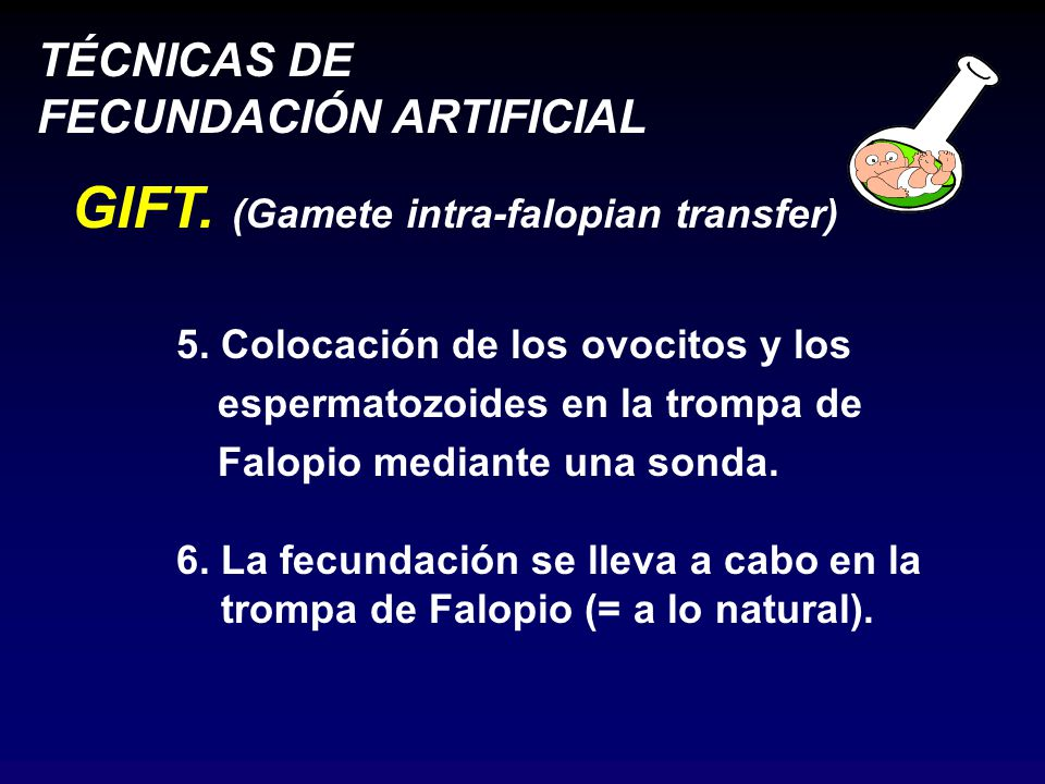 GIFT. (Gamete intra-falopian transfer)
