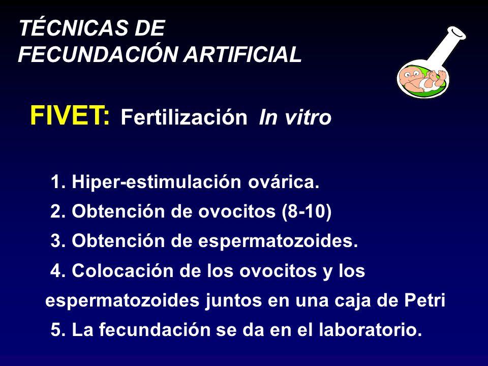 FIVET: Fertilización In vitro