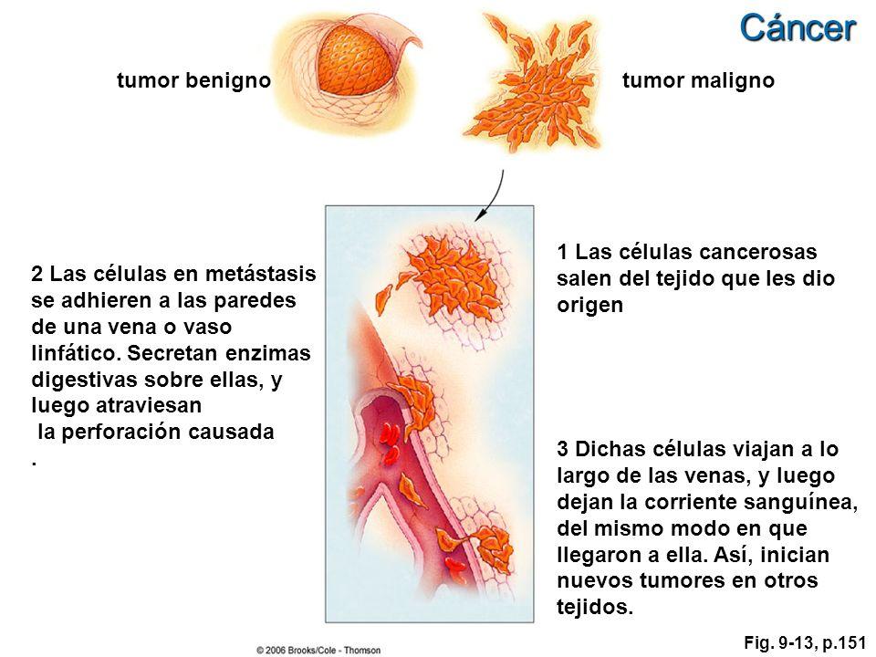 Cáncer tumor benigno tumor maligno