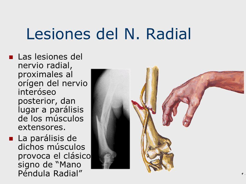 Lesiones del N. Radial