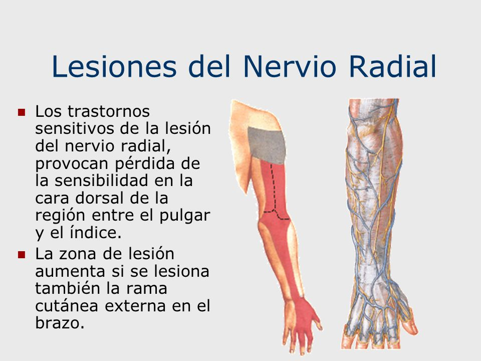 Lesiones del Nervio Radial