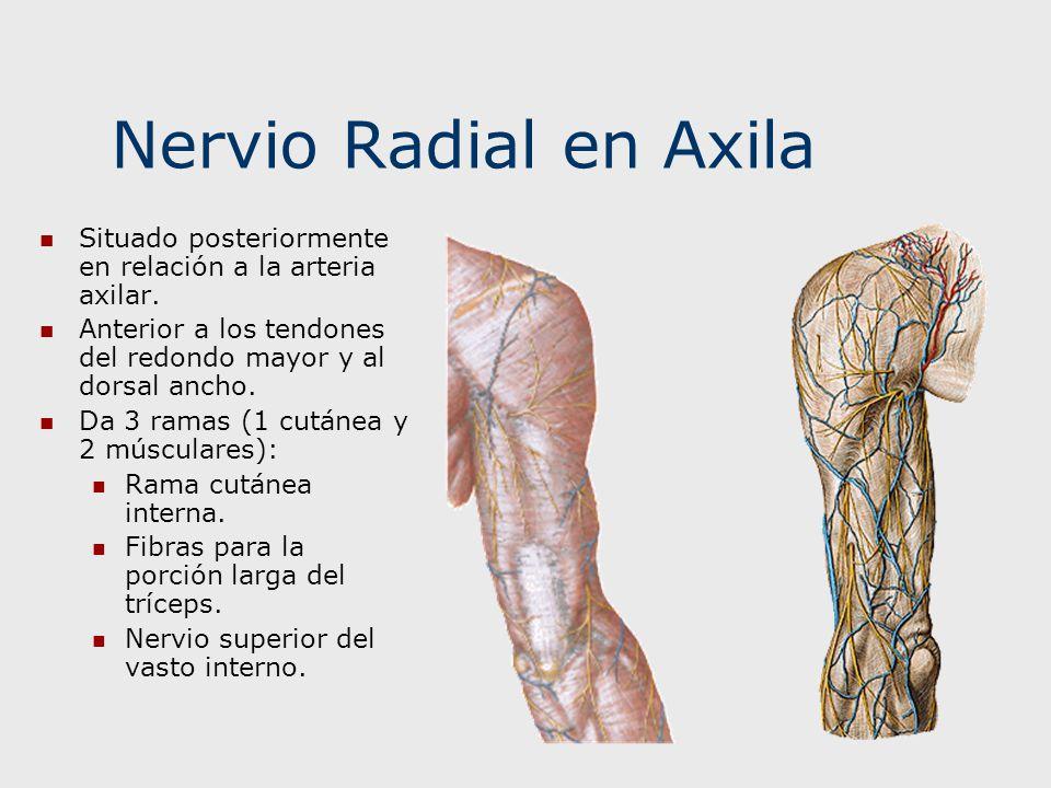 Nervio Radial en Axila Situado posteriormente en relación a la arteria axilar. Anterior a los tendones del redondo mayor y al dorsal ancho.