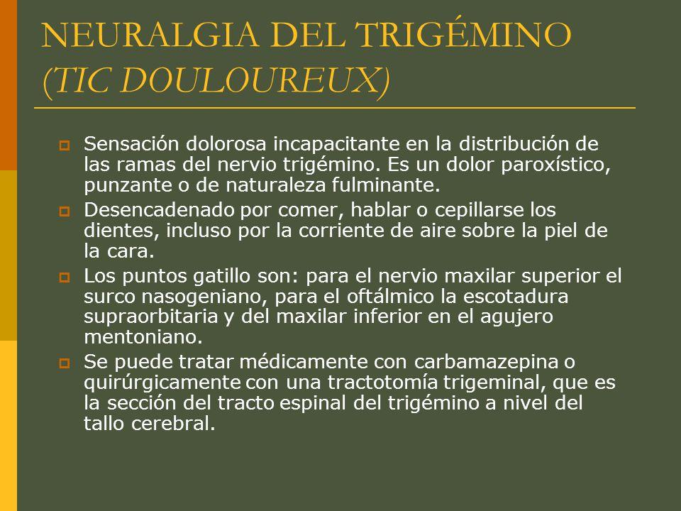 NEURALGIA DEL TRIGÉMINO (TIC DOULOUREUX)