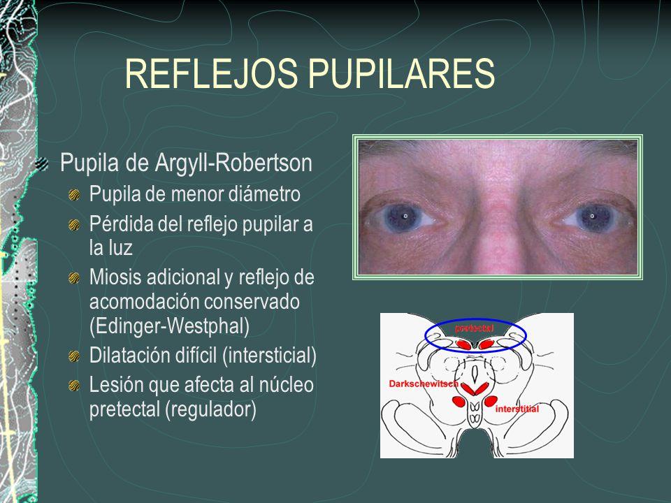 REFLEJOS PUPILARES Pupila de Argyll-Robertson Pupila de menor diámetro