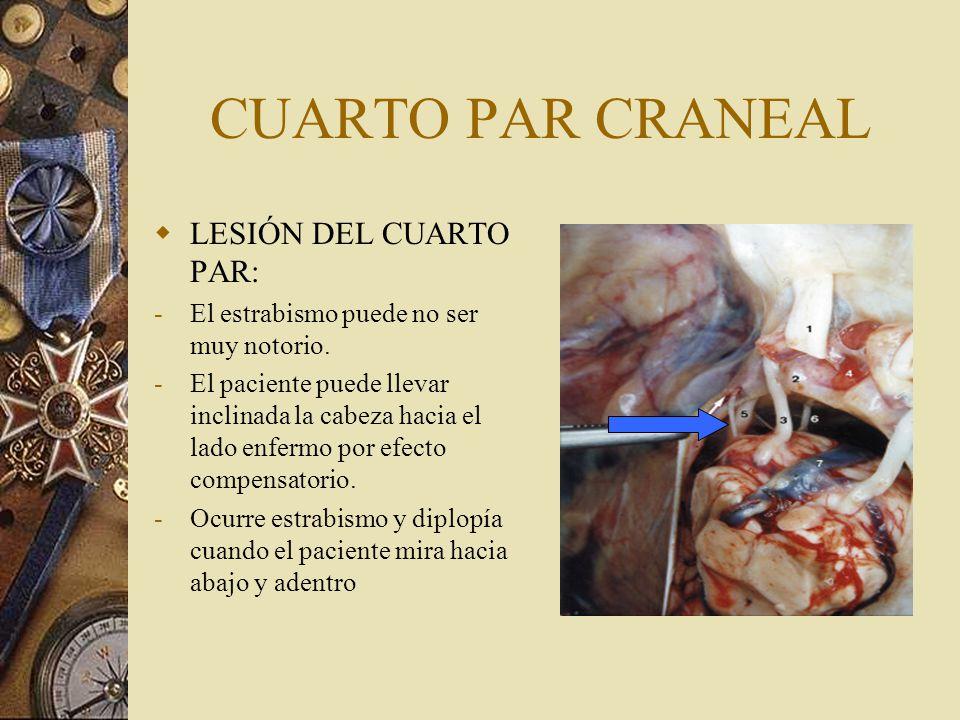 CUARTO PAR CRANEAL LESIÓN DEL CUARTO PAR: Fig.3