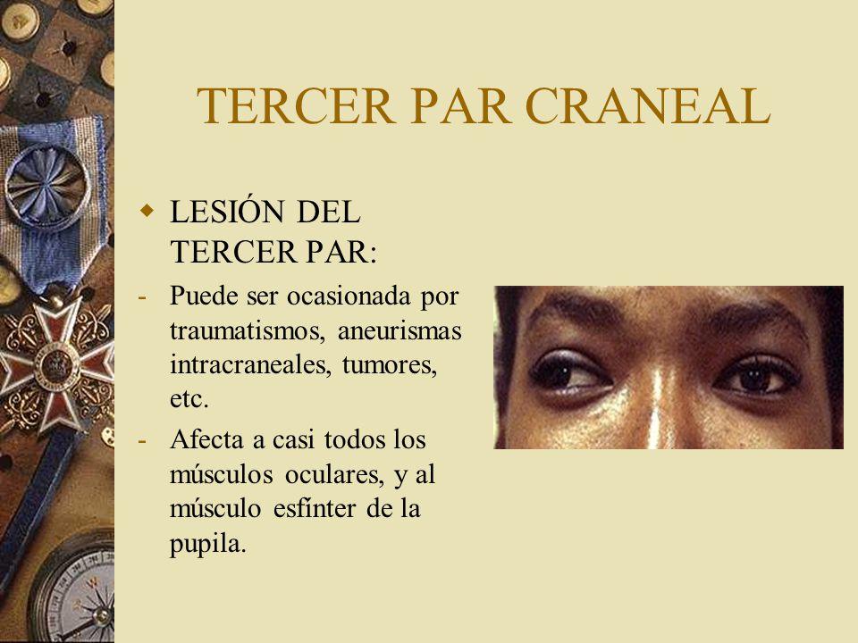 TERCER PAR CRANEAL LESIÓN DEL TERCER PAR: