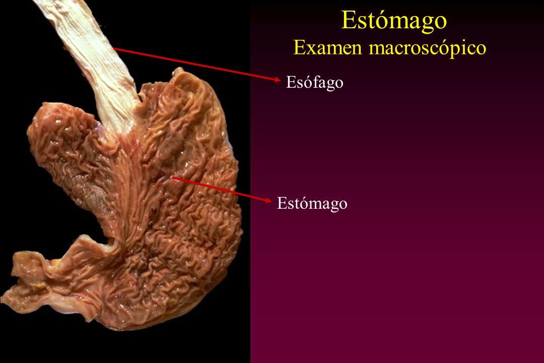 Estómago Examen macroscópico Esófago Estómago