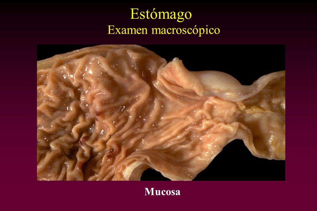 Estómago Examen macroscópico Mucosa