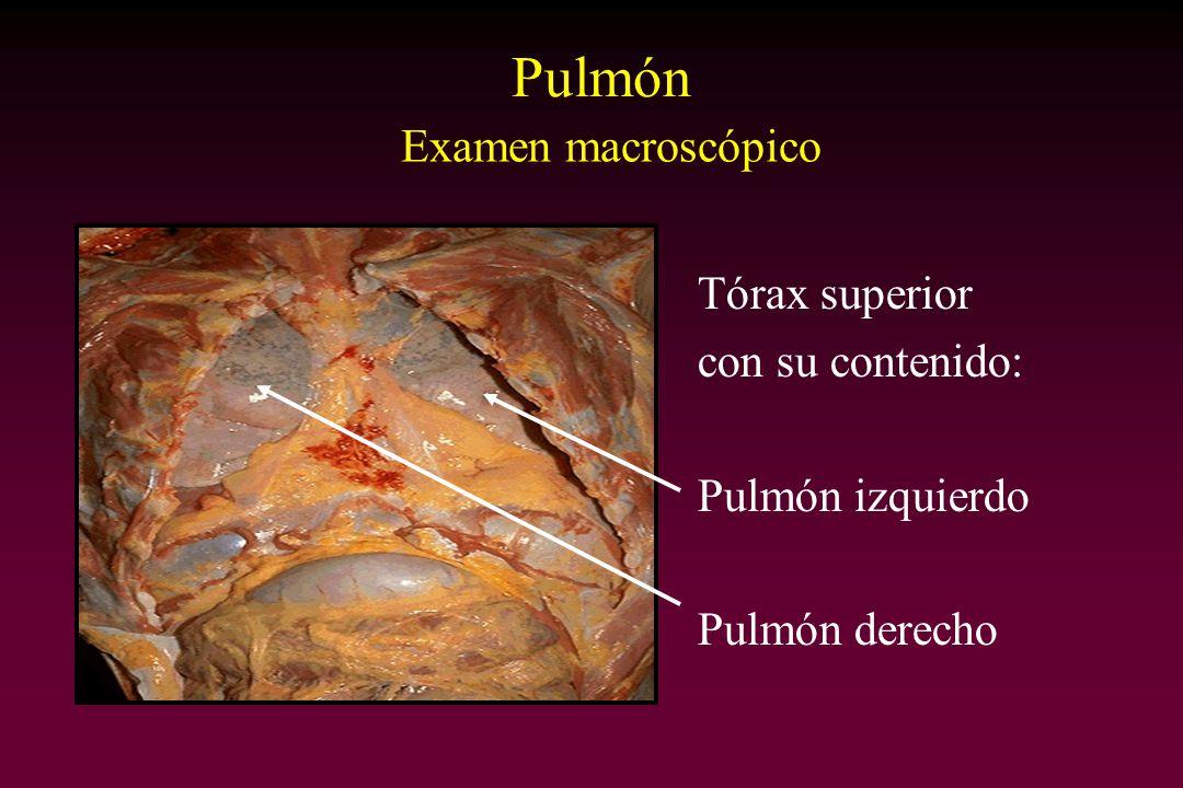 Pulmón Examen macroscópico Tórax superior con su contenido:
