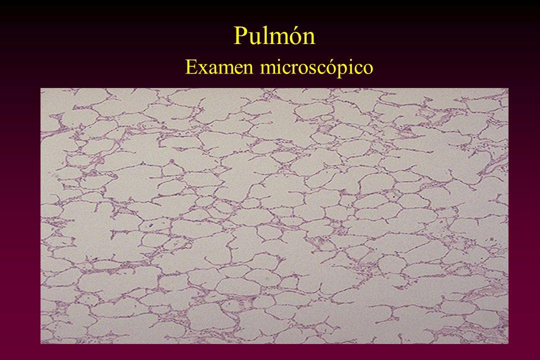 Pulmón Examen microscópico